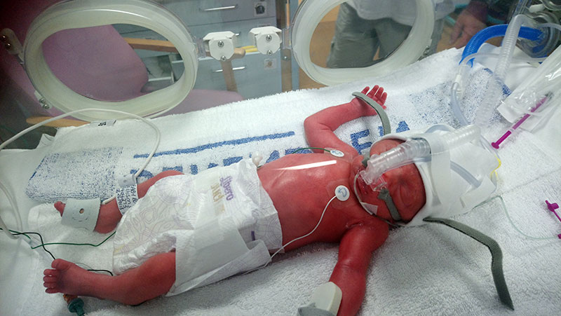 Finlay was immediately taken to the neonatal unit and placed in an incubator.